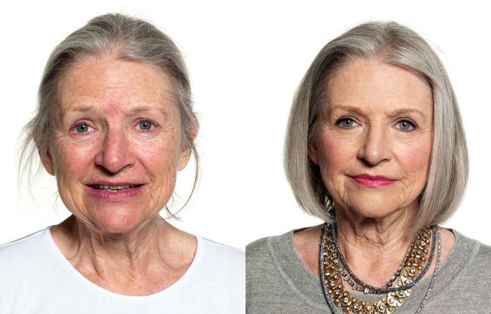 Best nonsurgical beauty enhancement treatments for women over 50